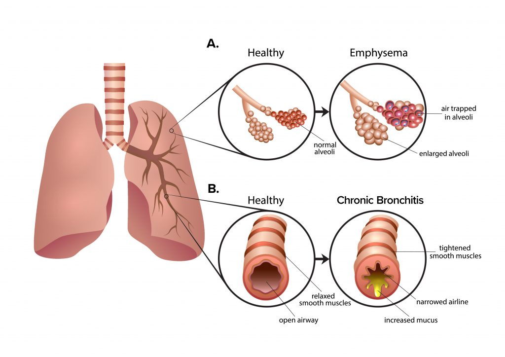 Chronic-Bronchitis_
