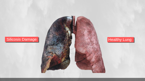 silica dust effects on lungs